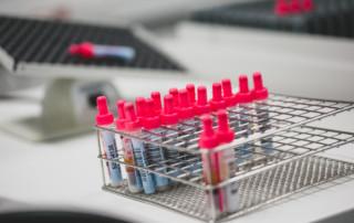 Recollida de mostres laboratori